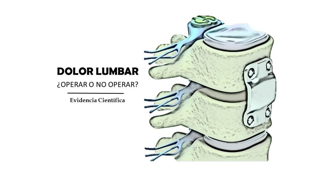 Artrodesis vertebral, tornillos en la espalda