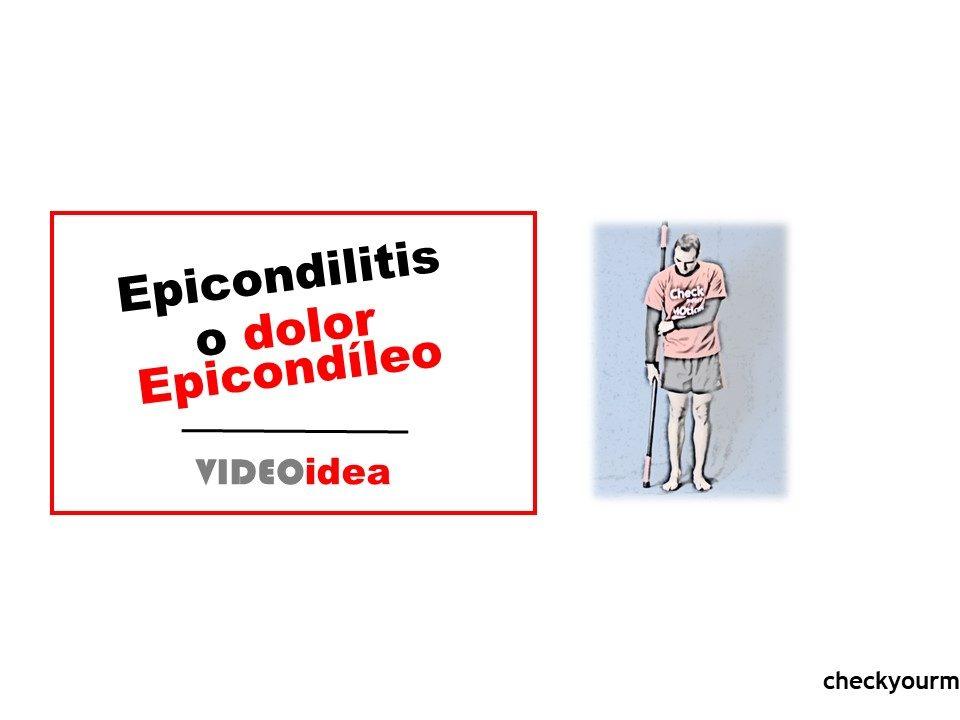 epicondilitis y el dolor epicondíleo