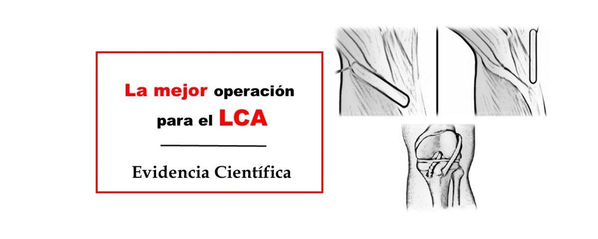 La mejor operación para el ligamento cruzado anterior LCA