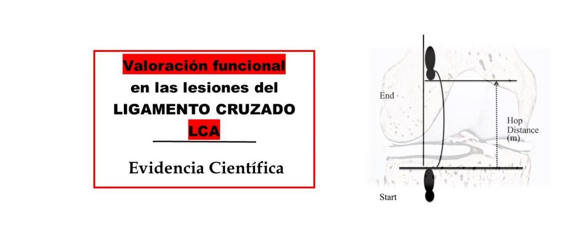 Valoración funcional en las lesiones del ligamento cruzado LCA