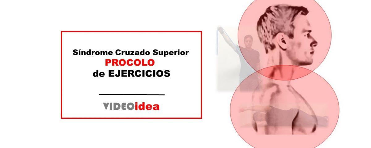 Síndrome cruzado superior ejercicios