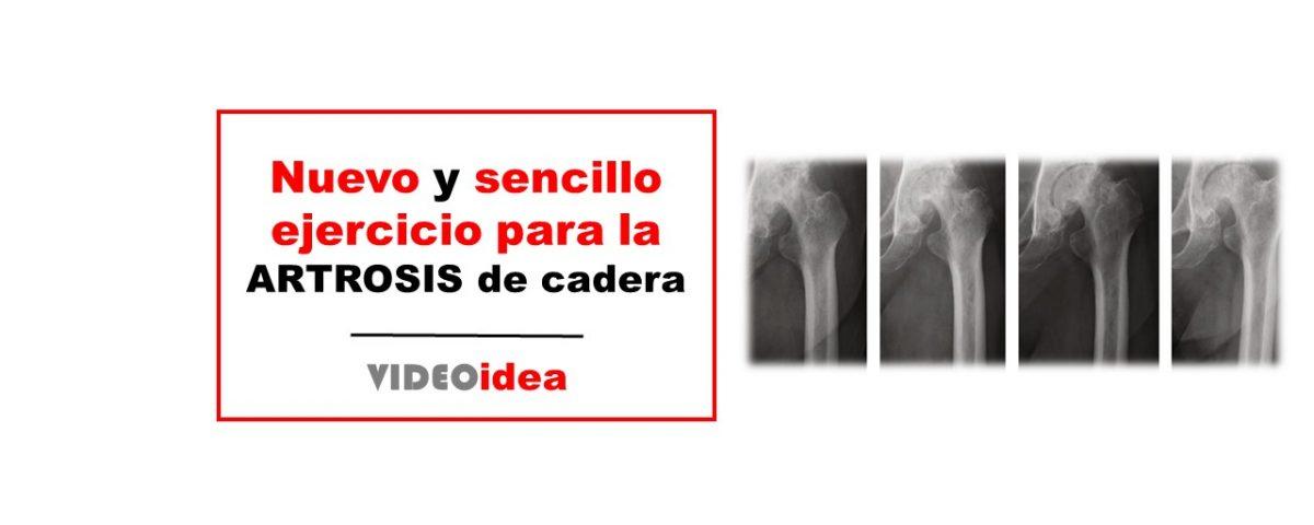 Ejercicio terapéutico para artrosis cadera
