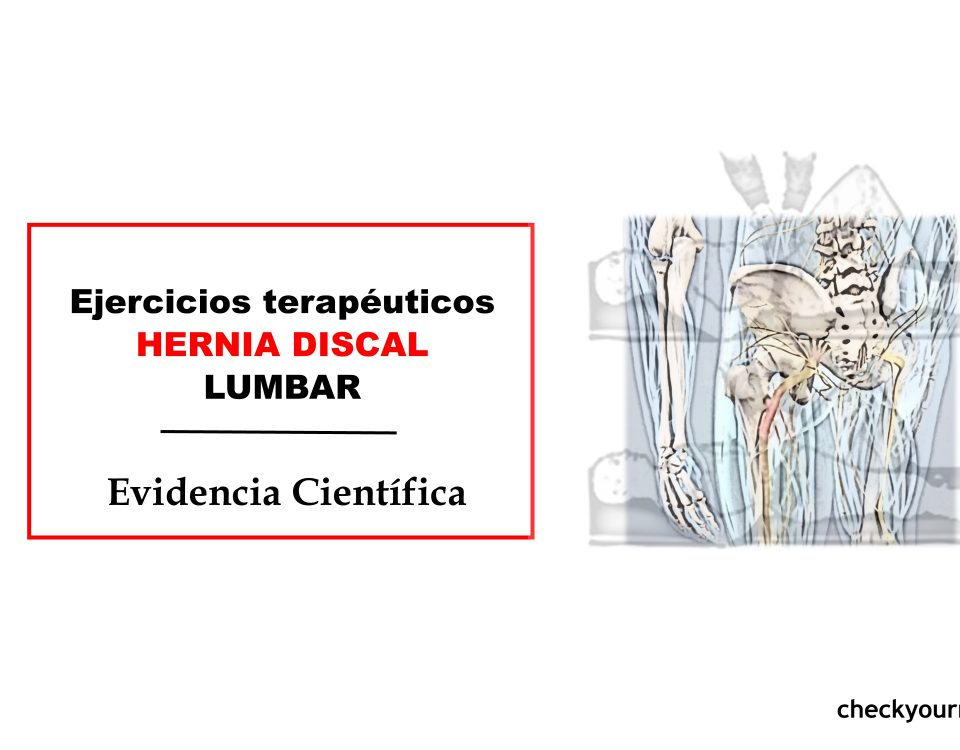 Ejercicios terapéuticos para las hernias discales lumbares